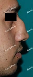 case-3-rhinoplasty-before-pandit-clinic