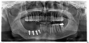 picture 5- dental implant placement