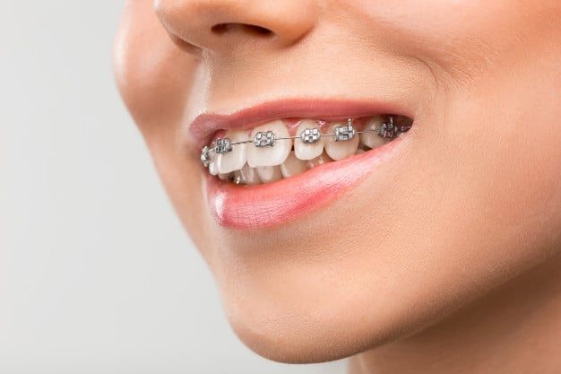 All You Need To Know About Braces