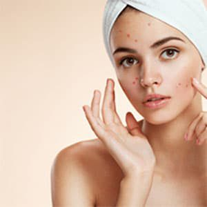 acne_pimples