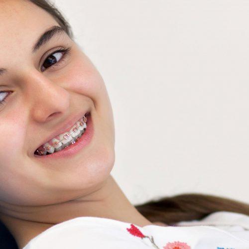 Orthodontics, braces for kids